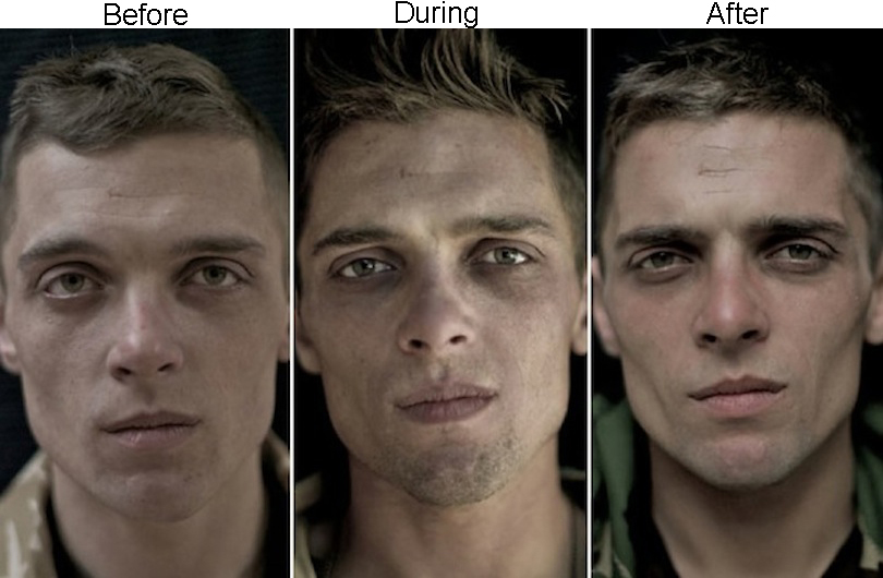 veterans-before-and-after